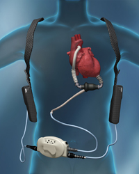 Left Ventricular Assist Device